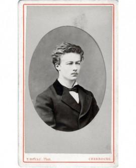 Portrait d'un jeune homme chassieux